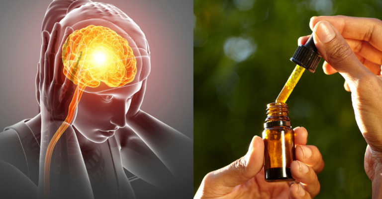 Does CBD help with migraine?