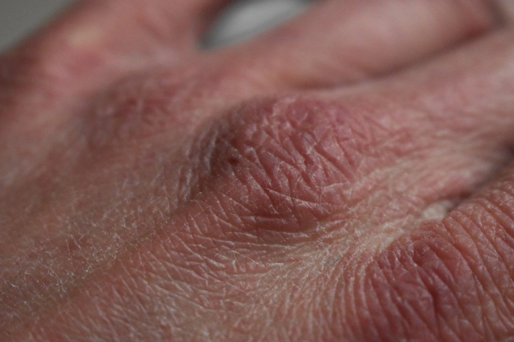 """This image shows a dry skin which is related to the article topic """"CBD for dry and flaky skin""""."""